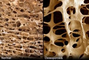 La densité osseuse est liée à la graisse