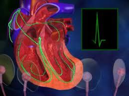 La chirurgie cardiaque n'est pas la panacée