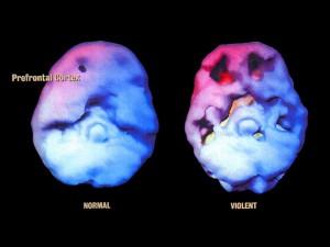Les trous fonctionnels du cerveau générés par le cannabis