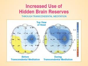 Le cerveau réagit de manière globale