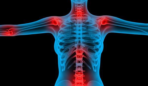 Traitement - Maladies liées à les rhumatismes chez les personnes ... - CATIE | Acide hyaluronique bienfaits